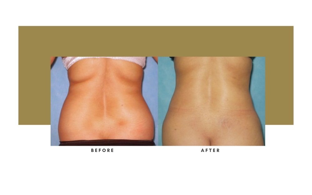 Liposuction Before and After 2