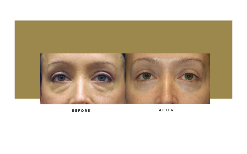 Lower Blepharoplasty Before and After 1