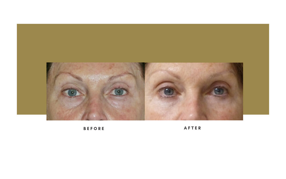 Lower Blepharoplasty Before and After 2
