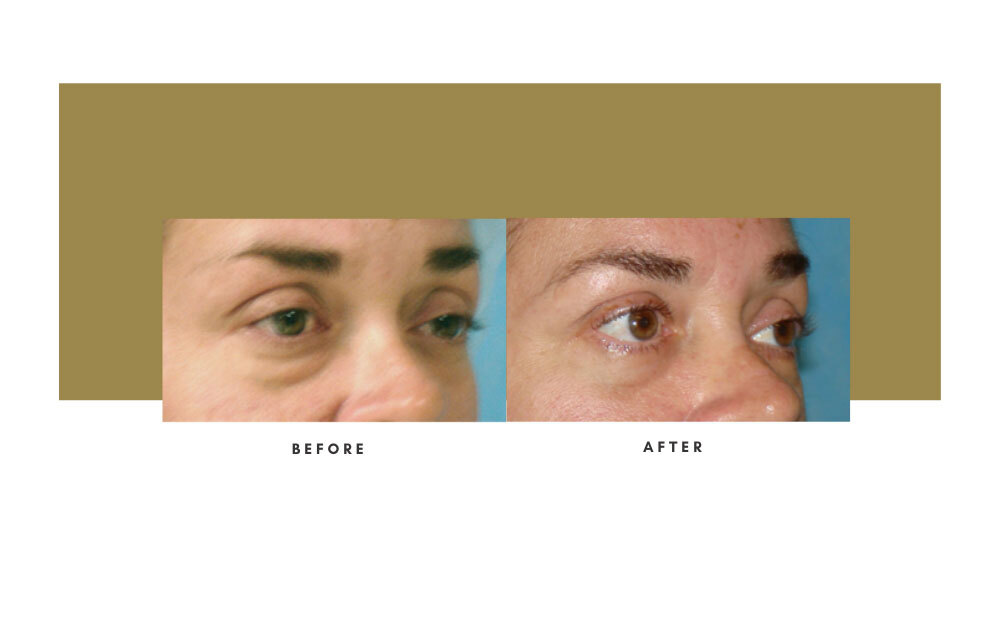 Lower Blepharoplasty Before and After 4
