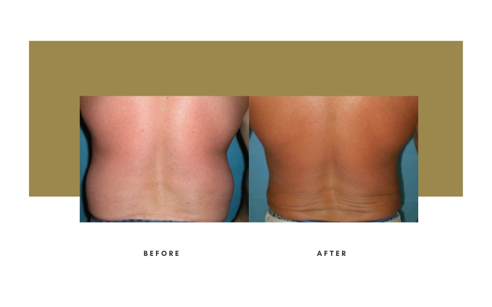 Men's Liposuction Before and After 1