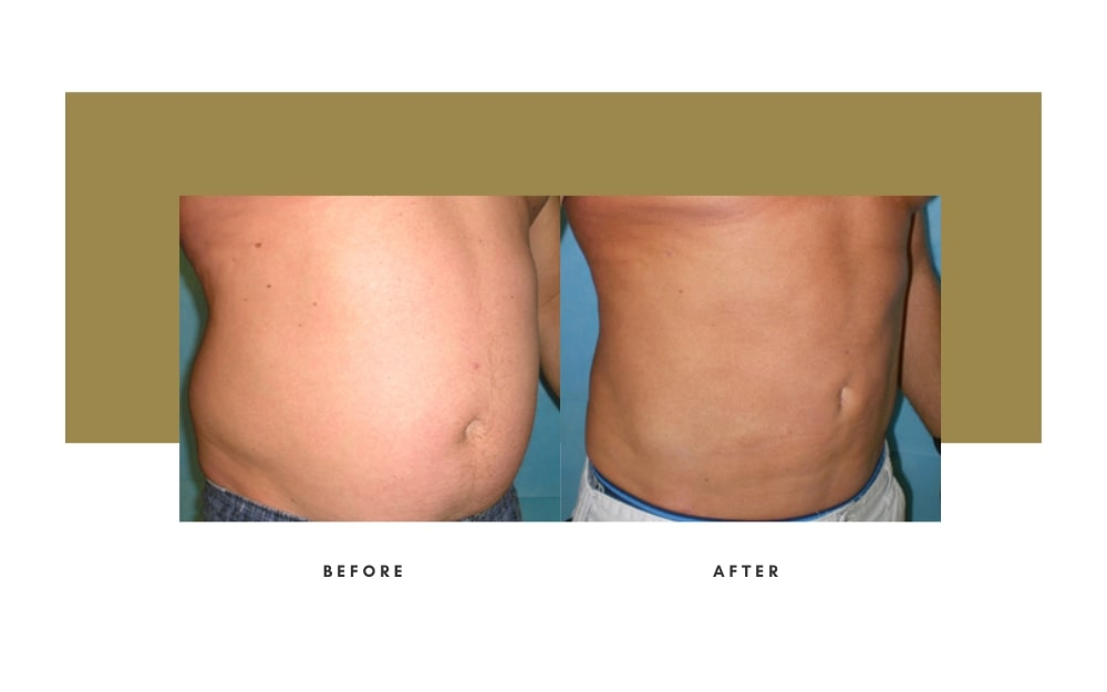 Men's Liposuction Before and After 2