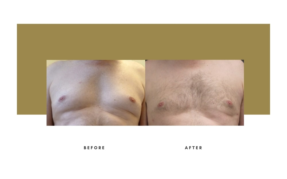 Men's Liposuction Before and After 3