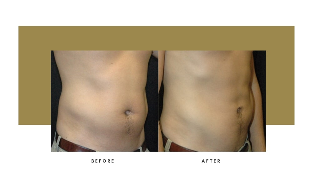 Men's Liposuction Before and After 5