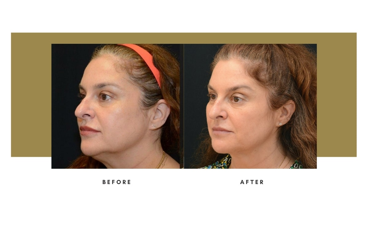Morpheus8 FaceTite Before and After 1