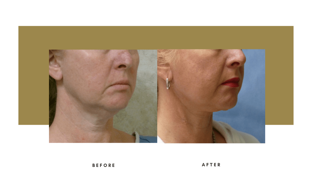 Necklift Before and After