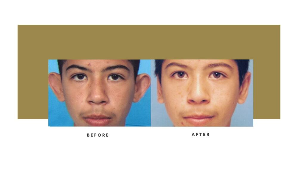 Otoplasty Before and After 3