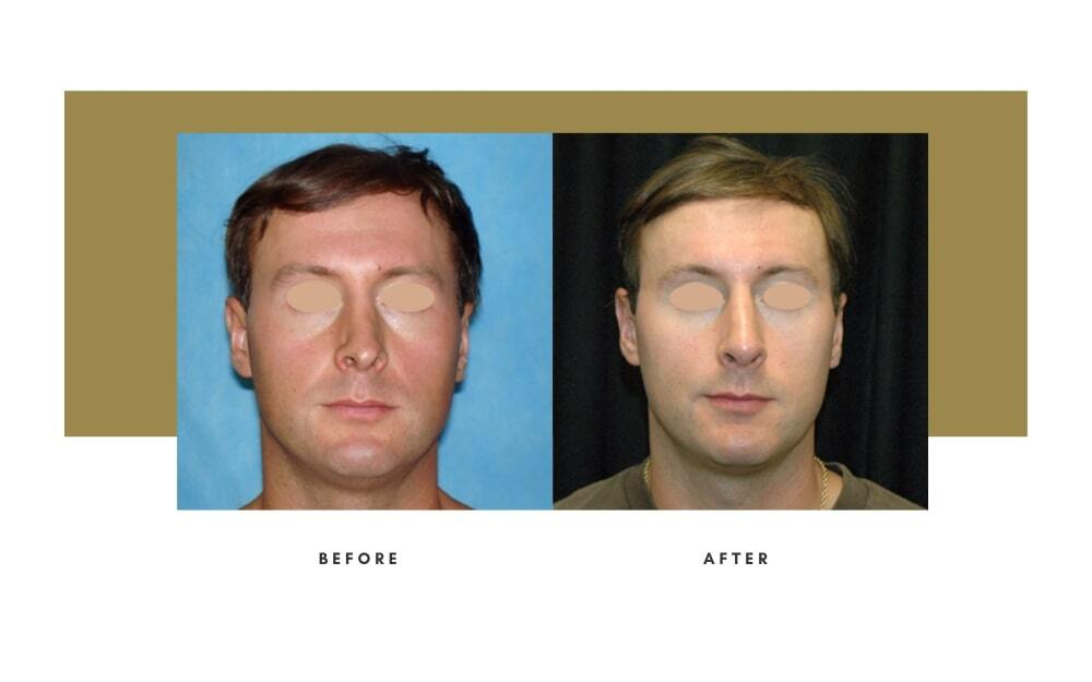 Revision Rhinoplasty Before and After 1