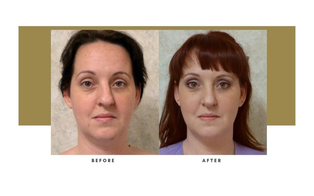 Revision Rhinoplasty Before and After 3