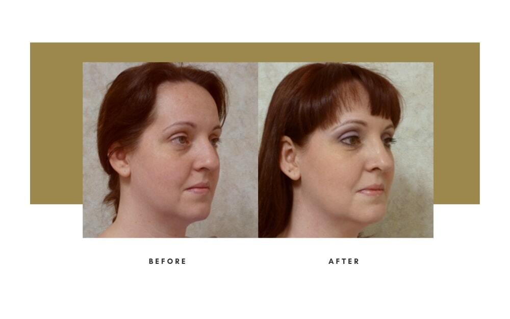 Revision Rhinoplasty Before and After 4