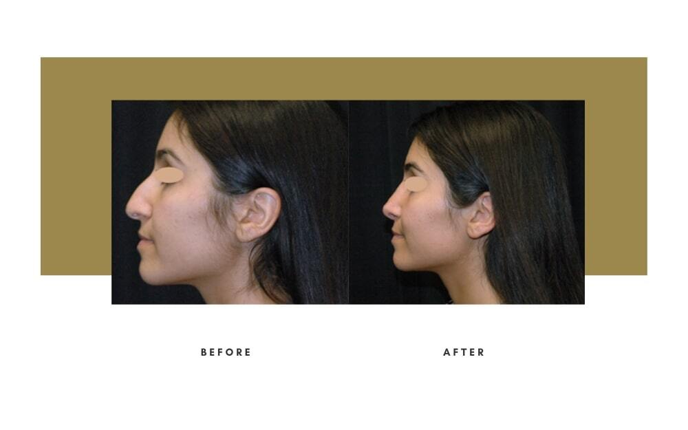 Rhinoplasty Before and After 10