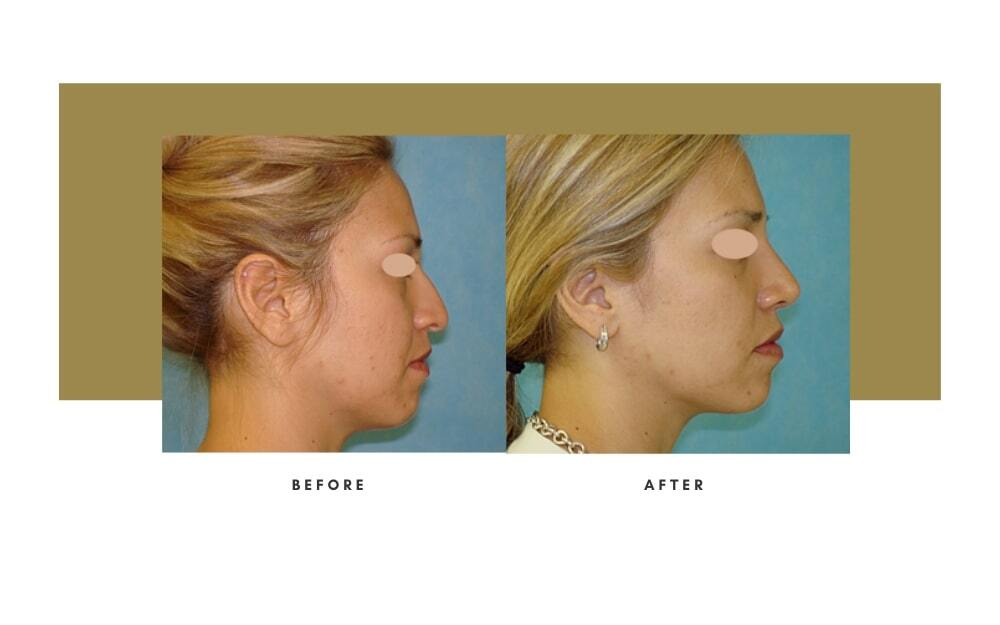 Rhinoplasty Before and After 4