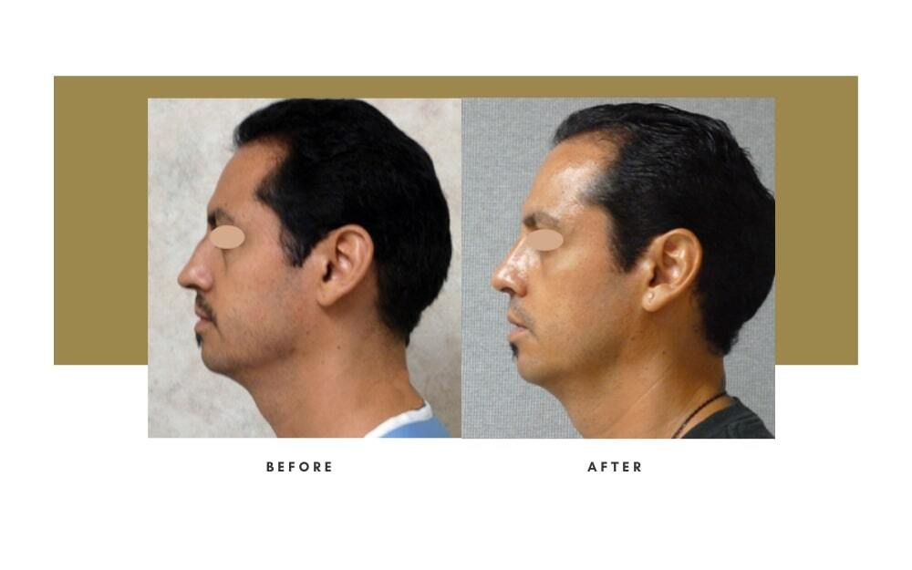 Rhinoplasty Before and After 6