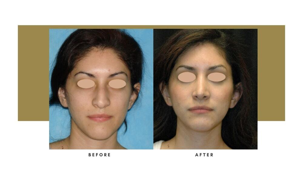 Rhinoplasty Before and After 7