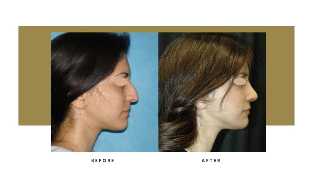 Rhinoplasty Before and After 8