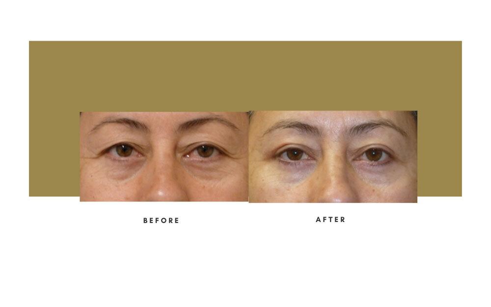 Upper Blepharoplasty Before and After 1