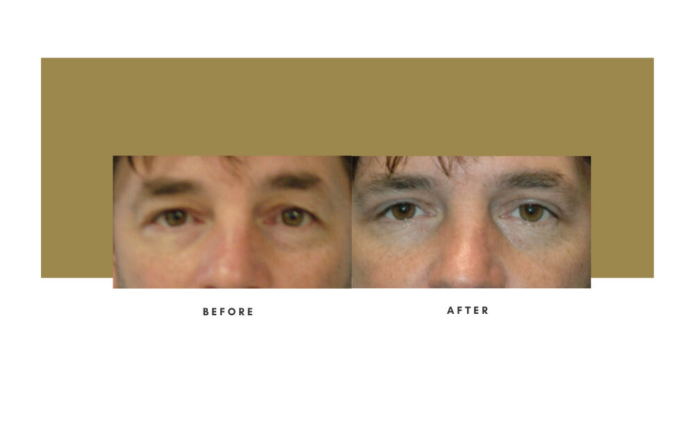 Upper Blepharoplasty Before and After 2