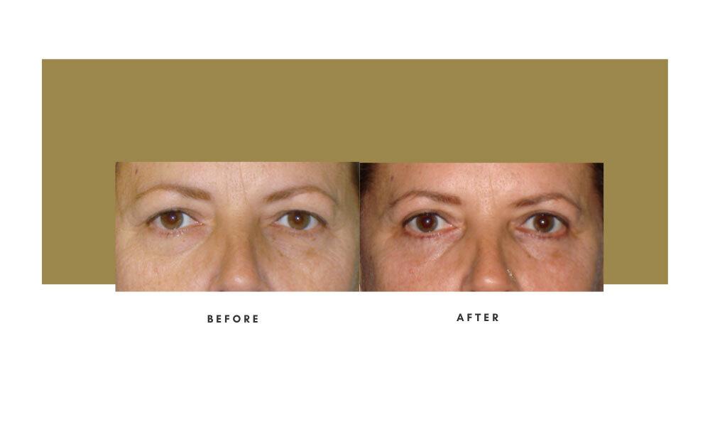 Upper Blepharoplasty Before and After 3