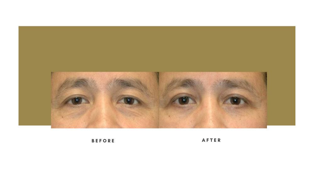 Upper Blepharoplasty Before and After 4