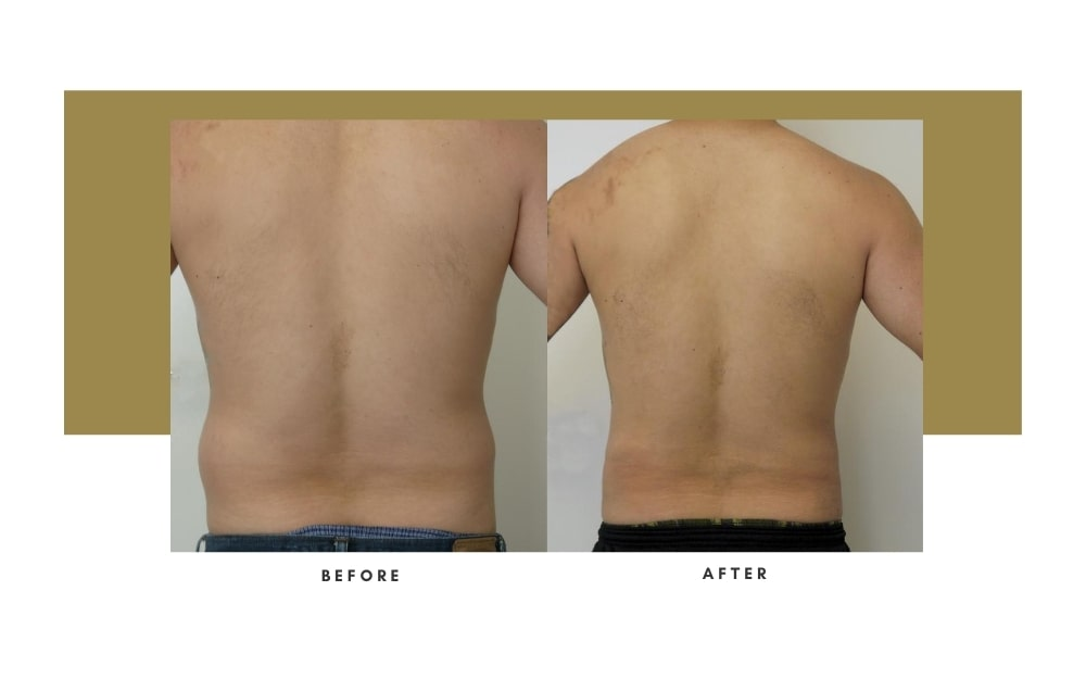 Men's Liposuction Before and After 4