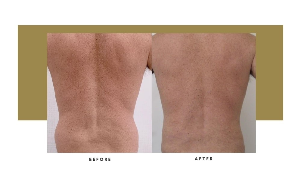 Men's Liposuction Before and After 6