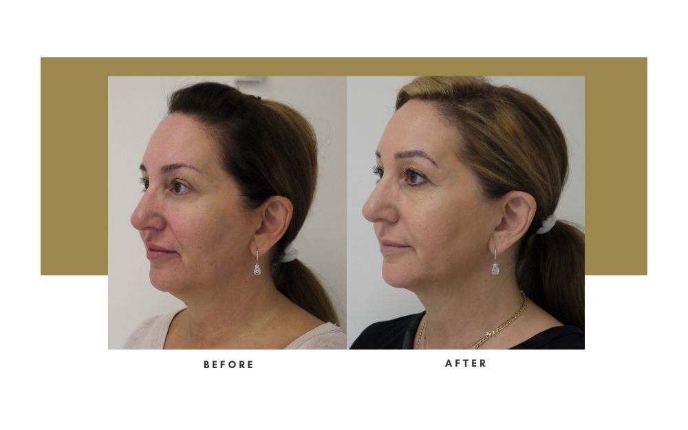 FaceTite Before and After 3