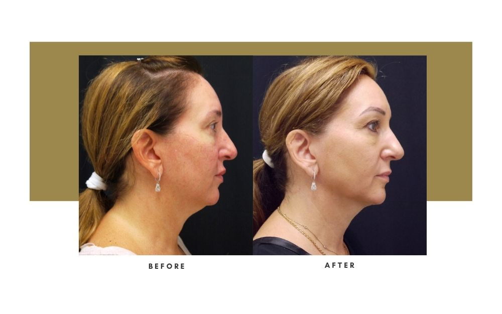 Microneedling Before and After 1