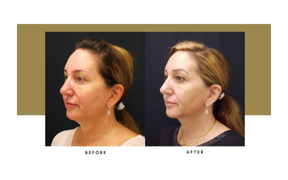 Microneedling Before and After 2