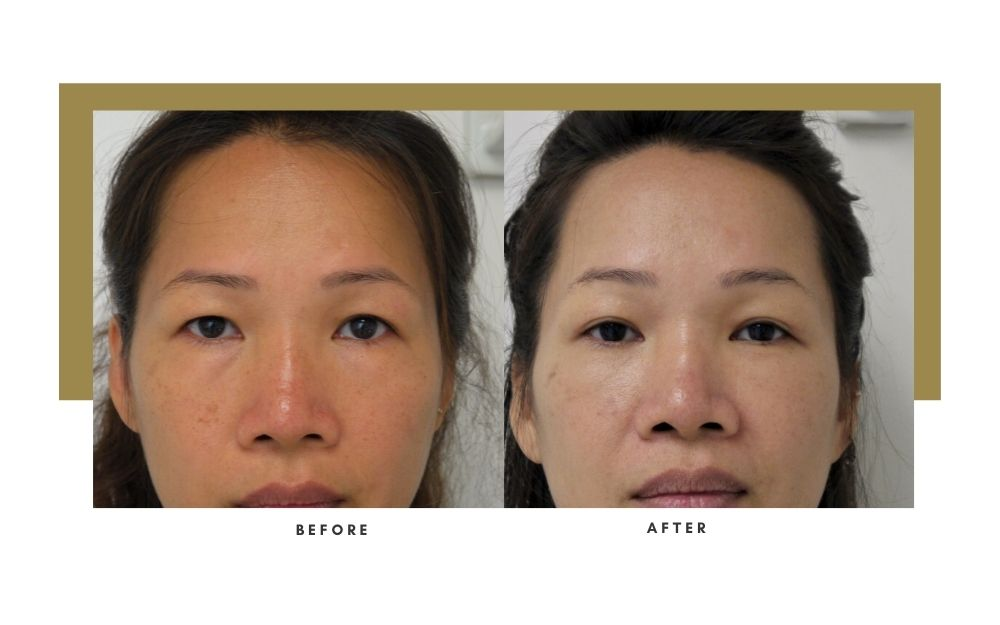 Brow Lift Before and After 7
