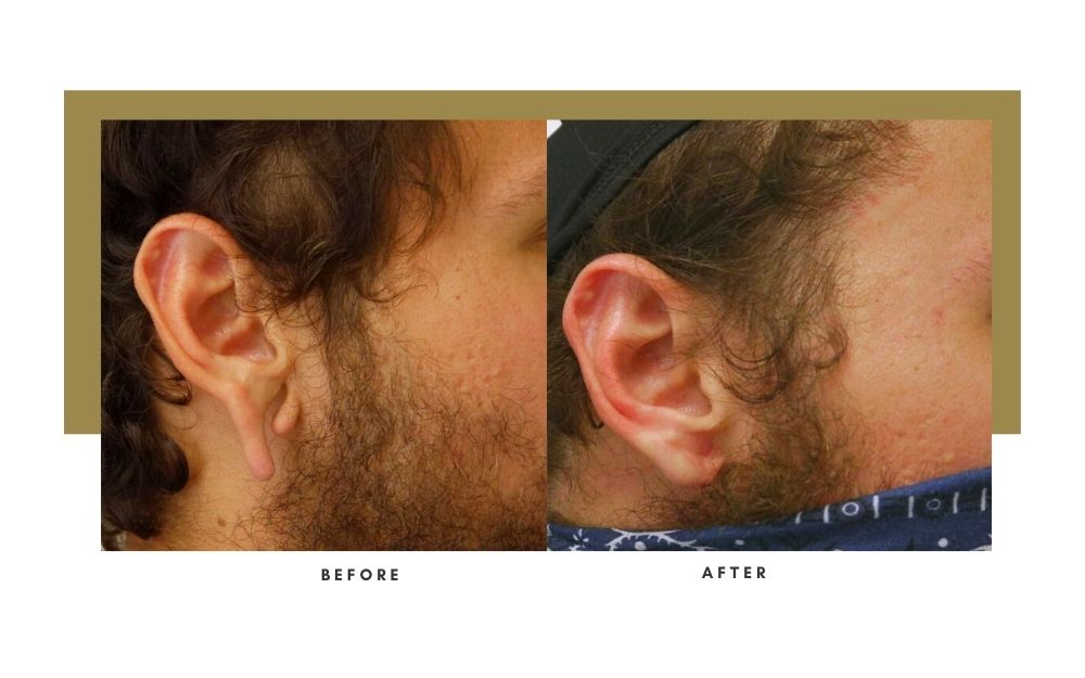 Otoplasty Before and After 4