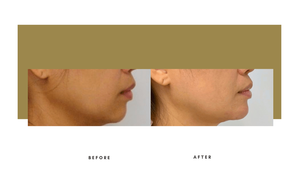 Injectables Before and After Case 5