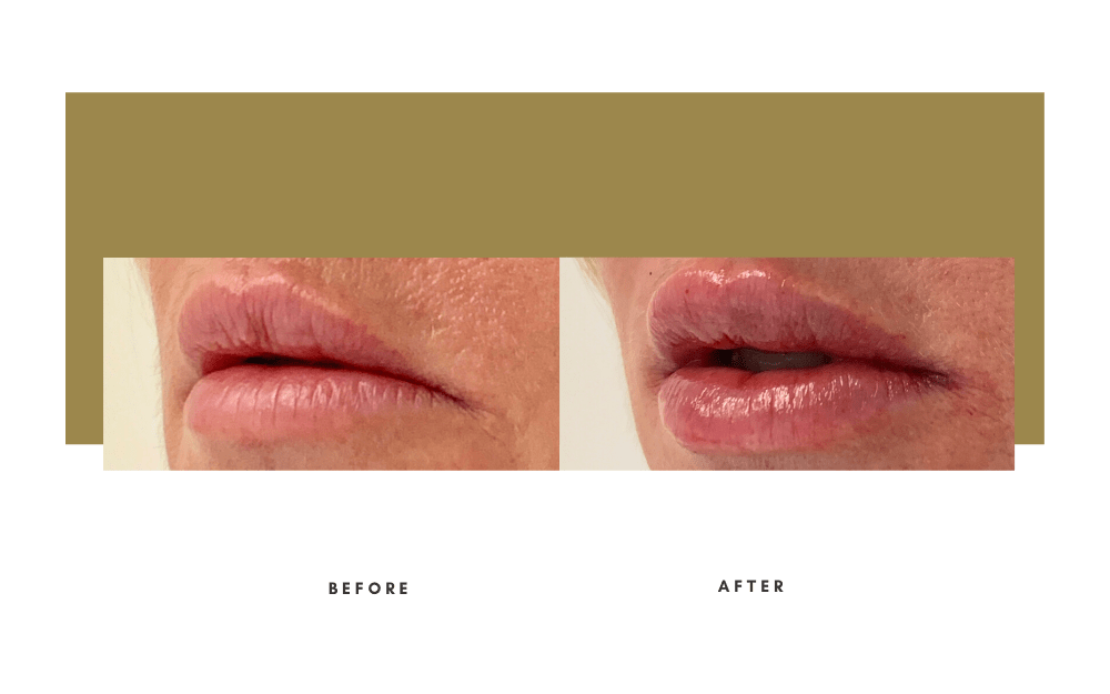 Injectables Before and After Case 6