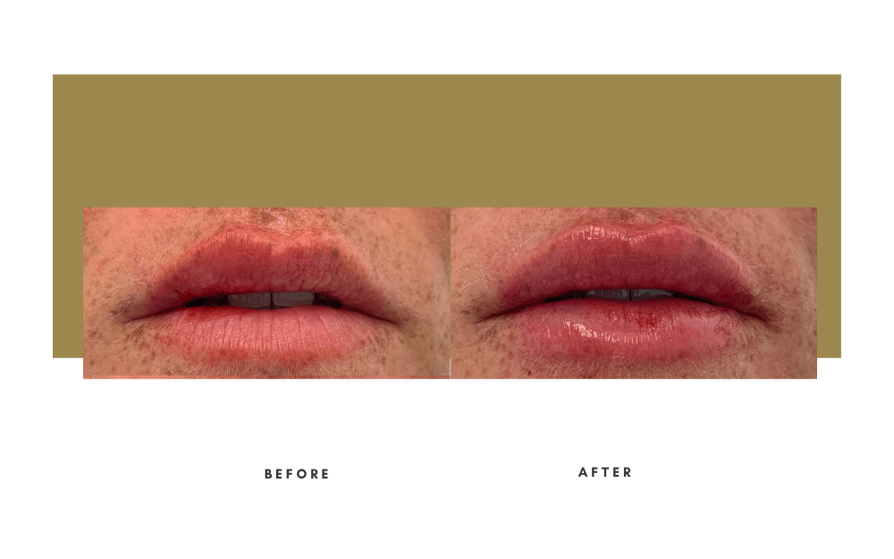 Injectables Before and After Case 7