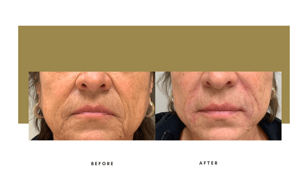 Injectables Before and After Case 8