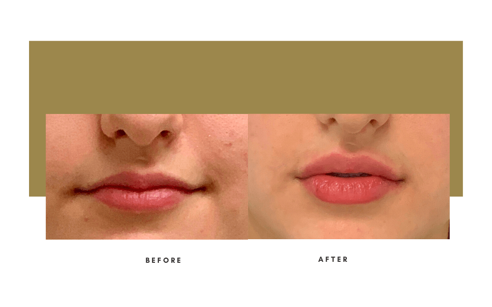 Injectables Before and After Case 9