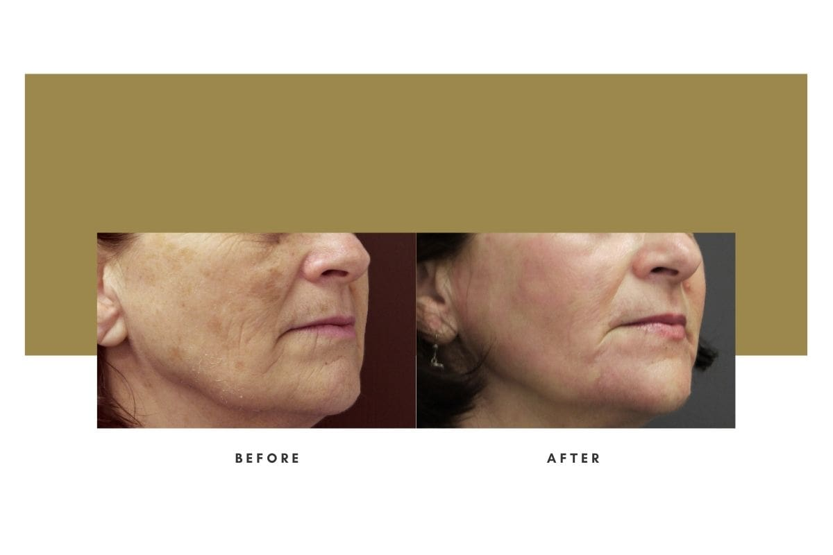 Chemical Peel Before and After 4
