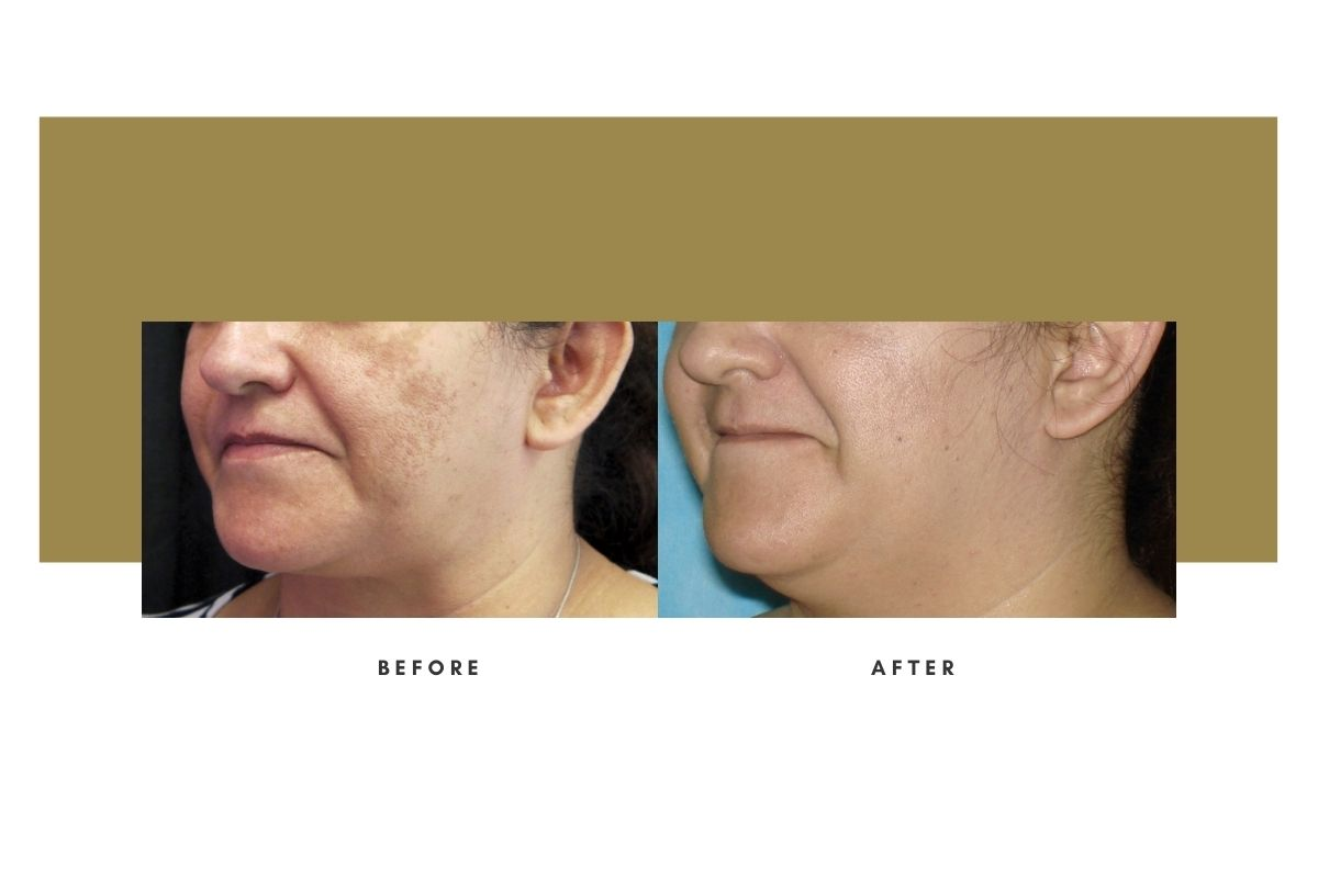 Chemical Peel Before and After Oblique View 2