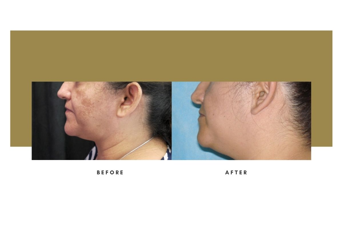 Chemical Peel Before and After Side View 3