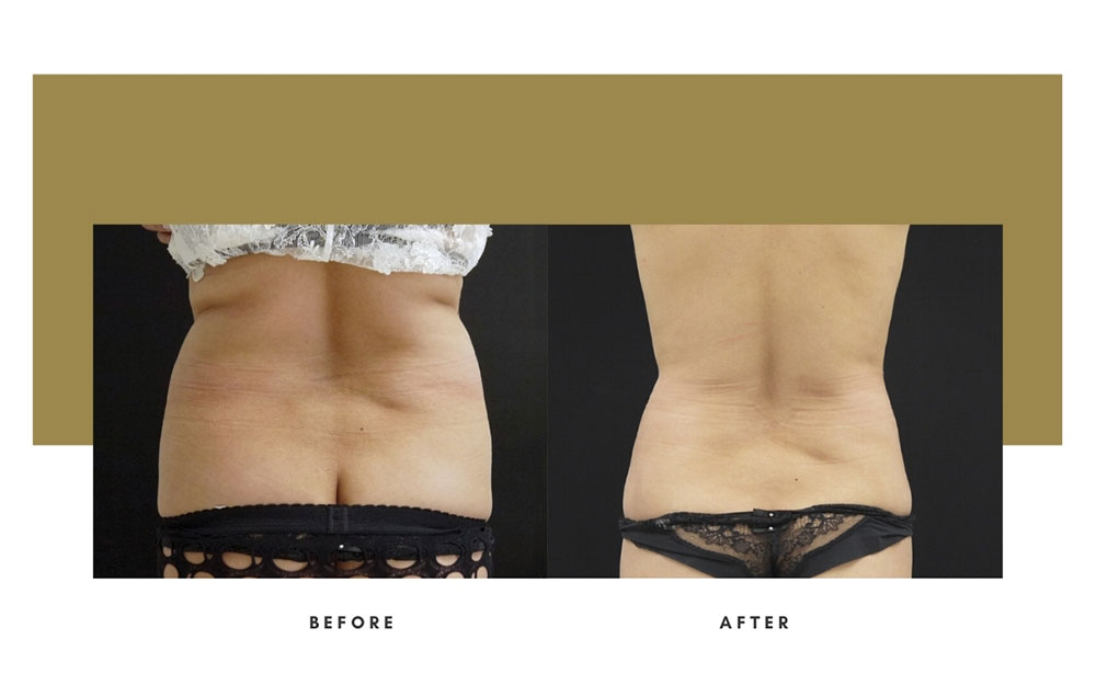 Liposuction Before and After Back Case 8