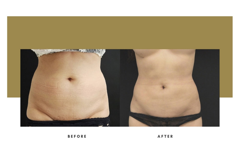 Liposuction Before and After Front Case 8