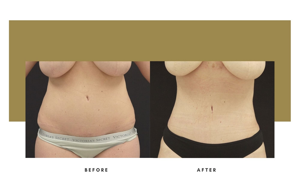 Liposuction Before and After Front Case 9