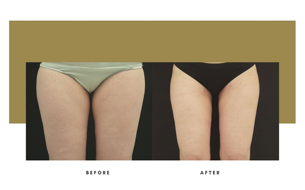 Liposuction Before and After Front Thighs Case 9