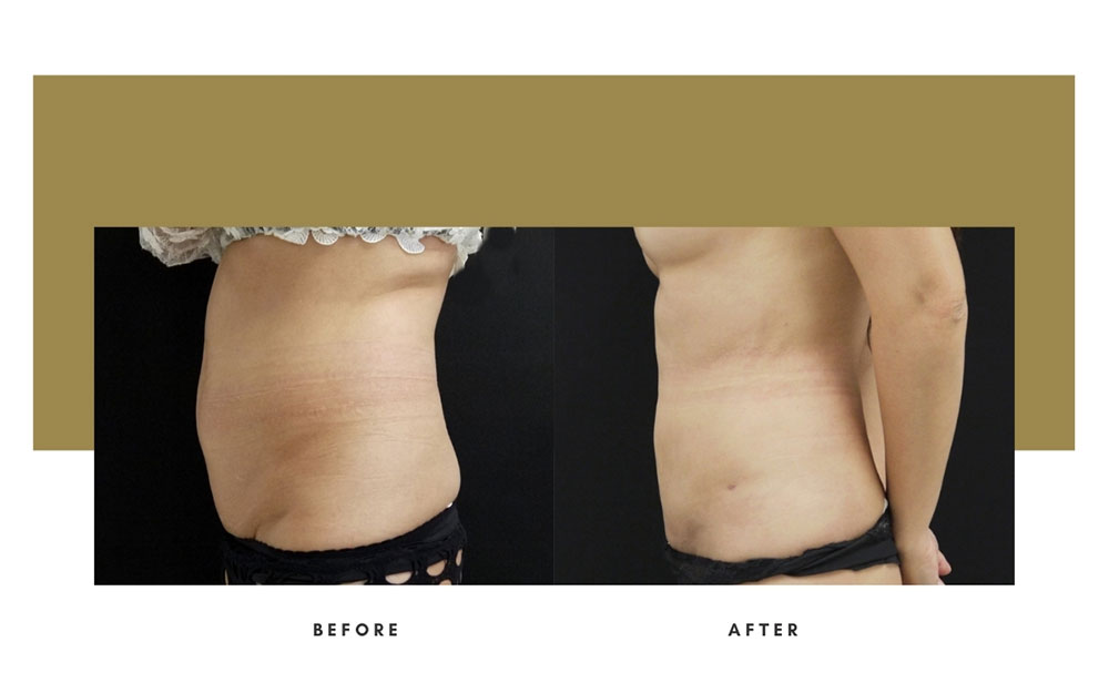 Liposuction Before and After Left Case 8