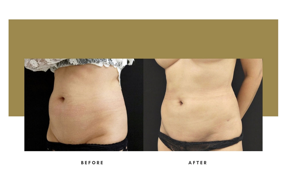 Liposuction Before and After Left Oblique Case 8