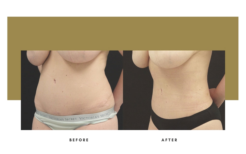 Liposuction Before and After Left Oblique Case 9