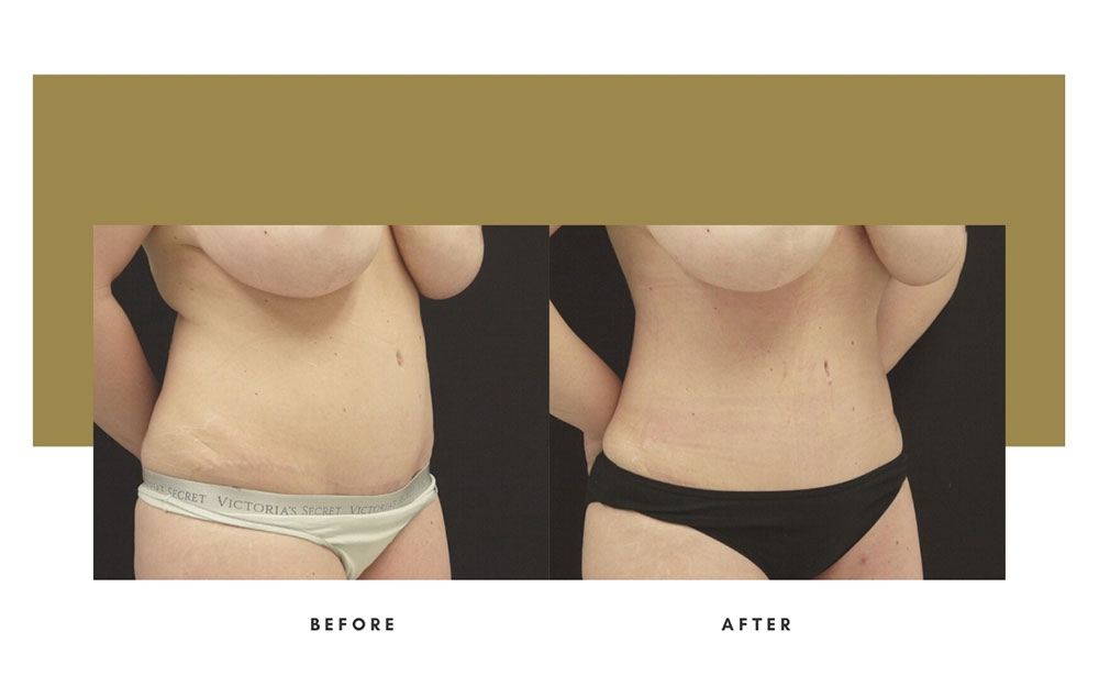 Liposuction Before and After Right Oblique Case 9
