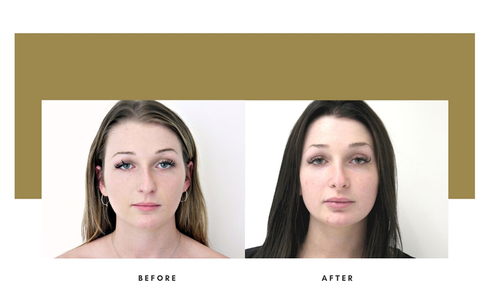 Rhinoplasty Before and After Front Case 15