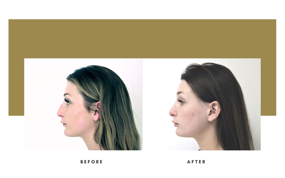 Rhinoplasty Before and After Left Case 15