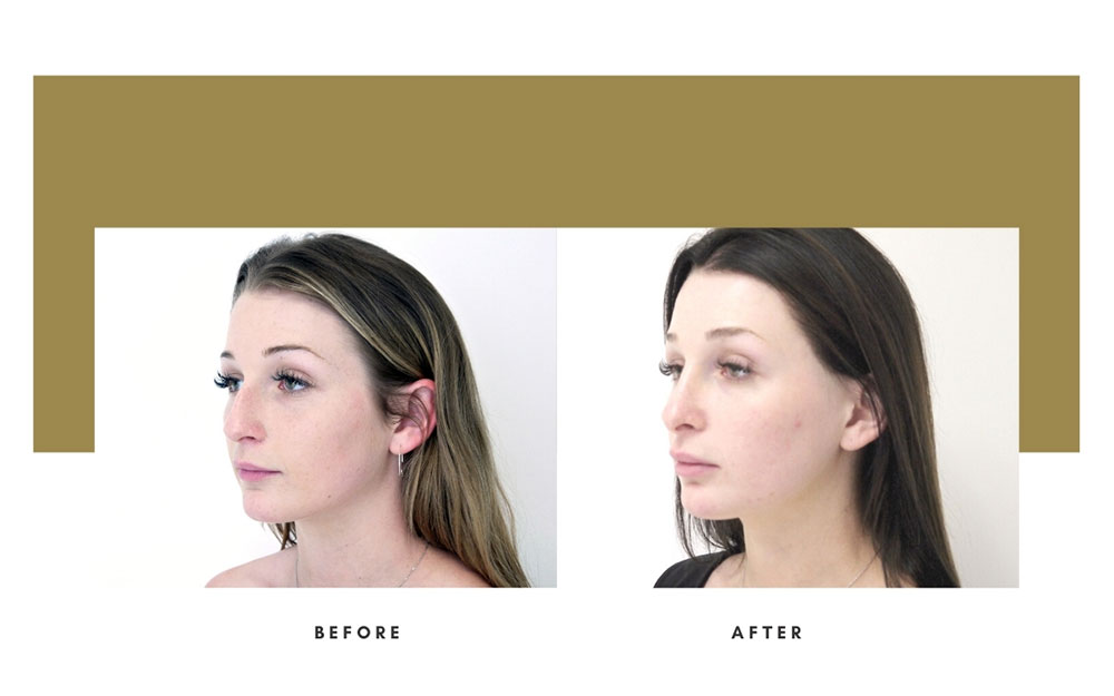 Rhinoplasty Before and After Left Oblique Case 15