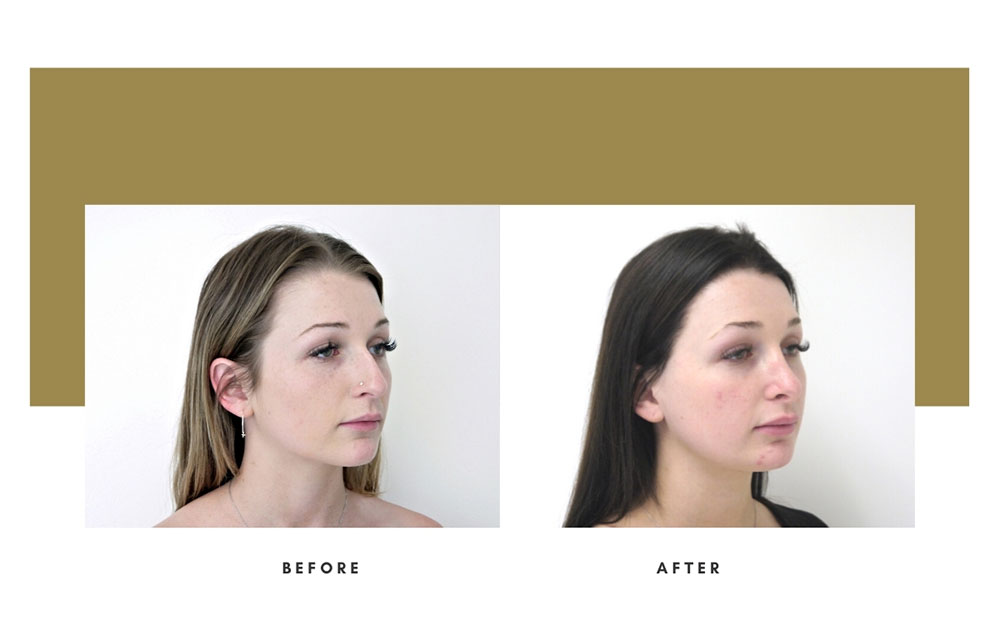 Rhinoplasty Before and After Right Oblique Case 15